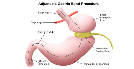 اساس کار در جراحی های چاقی
