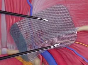 جراحی فتق اینگوئینال به روش لاپارسکوپی