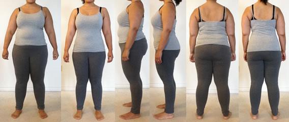 درمان چاقی موضعی